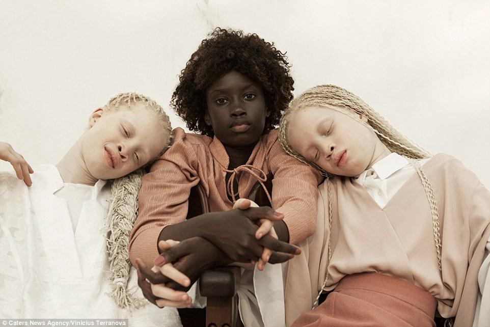 Albino Zwillinge begeistern die Modewelt.