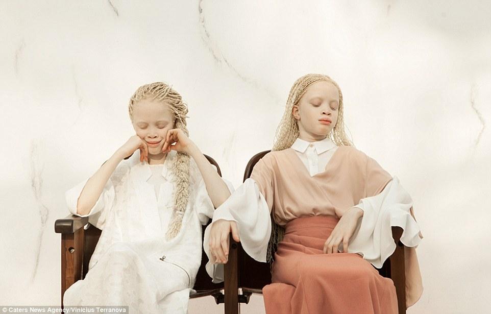 Albinismus, Zwillinge